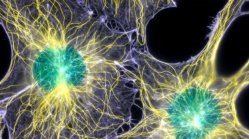 Actin-microtubules-and-nuclei-labeled-in-cells